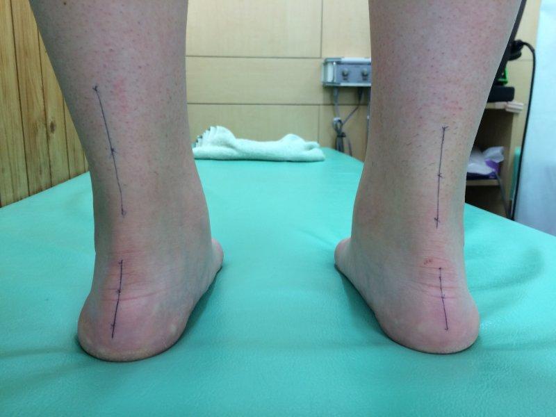 足首の内向・歪みがある場合などに